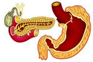 simptomu raka podgeludocnoi gelezu