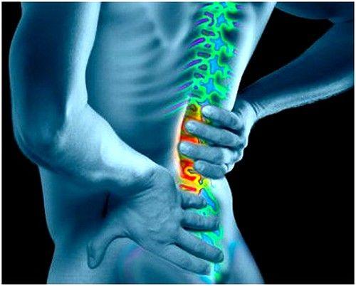 Симптоми защемлення нерва в попереку і лікування