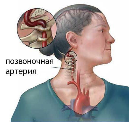 Синдром хребетної артерії при шийному остеохондрозі: симптоми, профілактика