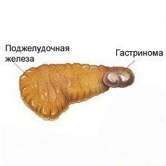 Синдром-еллісона
