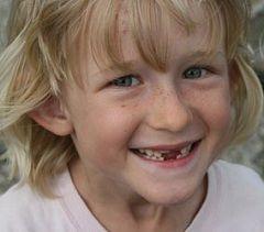 Хворобливі відчуття - нормальне явище при зміні зубів у дітей