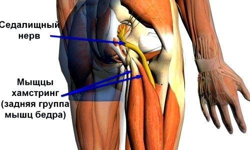 Способи лікування і симптоми при запаленні сідничного нерва