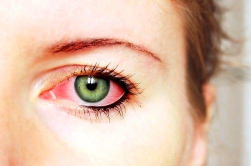 Способи лікування коньюктивита очей