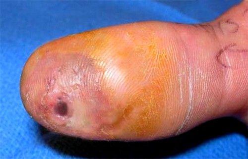 Способи лікування панарицію пальця на руці