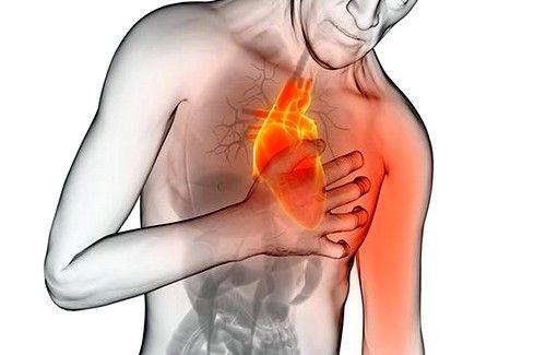 Стенокардія: симптоми