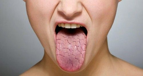 Сухість у роті - причини якої хвороби