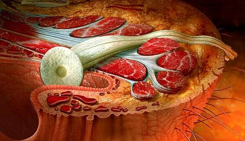 Свищ прямої кишки - це утворився в районі прямої кишки канал, який починається в її нижніх відділах і закінчується на сідничної шкірі або в товщі жирової клітковини, яка знаходиться навколо прямої кишки