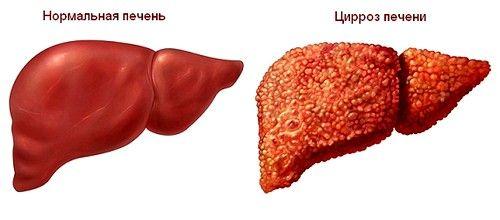 У більшості випадків цироз спровокований хронічними печінковими патологіями