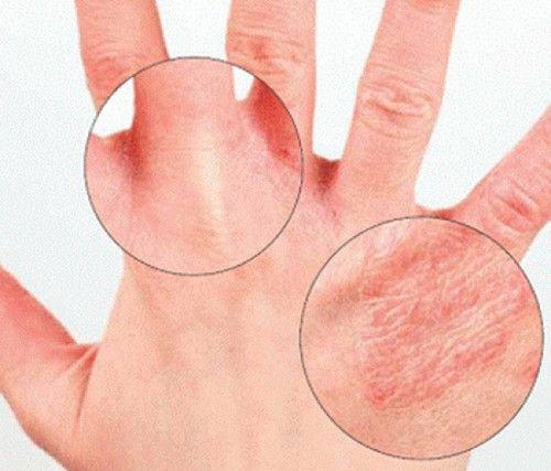 Тріскається шкіра на пальцях рук