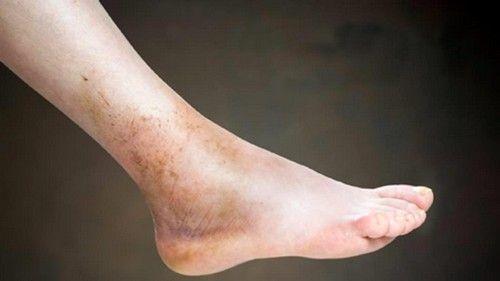 Тромбофлебіт глибоких вен нижніх кінцівок: симптоми, лікування