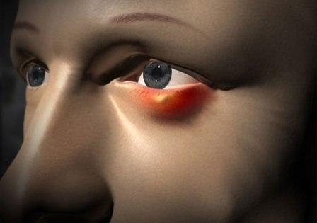 У мене часто буває ячмінь на оці. Які існують ефективні способи його лікування і профілактики?