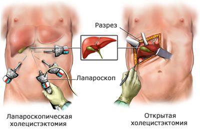 Операція холецистектомії: порожнинна і лапароскопічна