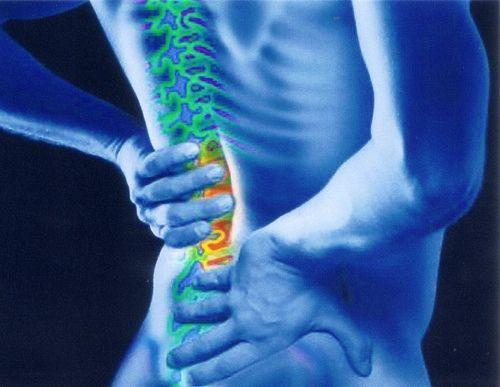 Обмеження нерва в поперековому відділі хребта: лікування