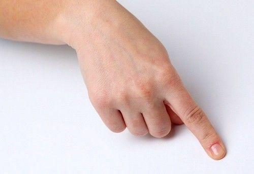 Забій пальця на руці: що робити?