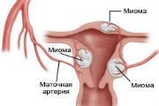 Вузлова міома матки - причини, симптоми, лікування
