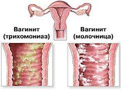 Запалення слизової піхви - вагініт