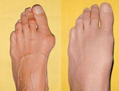 Вальгусна деформація ноги