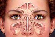 verxnechelustnoi sinusit