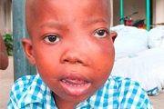 Вірус епштейна-барр у дітей: причини, симптоми, лікування