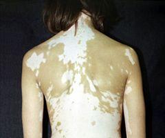 вітіліго спина