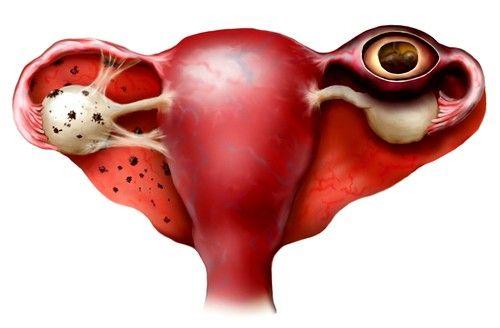 Позаматкова вагітність, ознаки на ранніх термінах