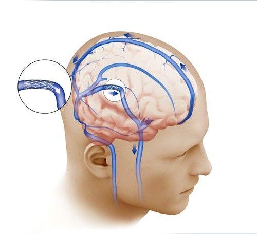Внутрішньочерепний тиск симптоми і лікування