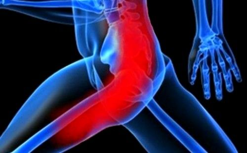 Запалення сідничного нерва: симптоми, лікування
