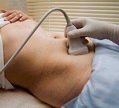 Вплив ультразвуку на вагітних жінок
