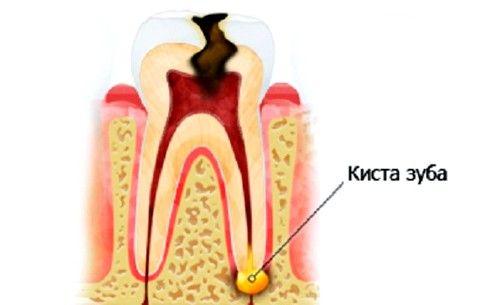 Чи можливо лікування кісти зуба без видалення