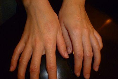 Сверблячка прищів на руках і пальцях - серйозна і неприємна проблема, яку необхідно вирішувати