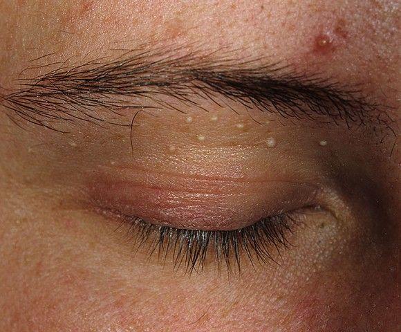 Досить часто прищі на обличчі сверблять через зараження шкіри