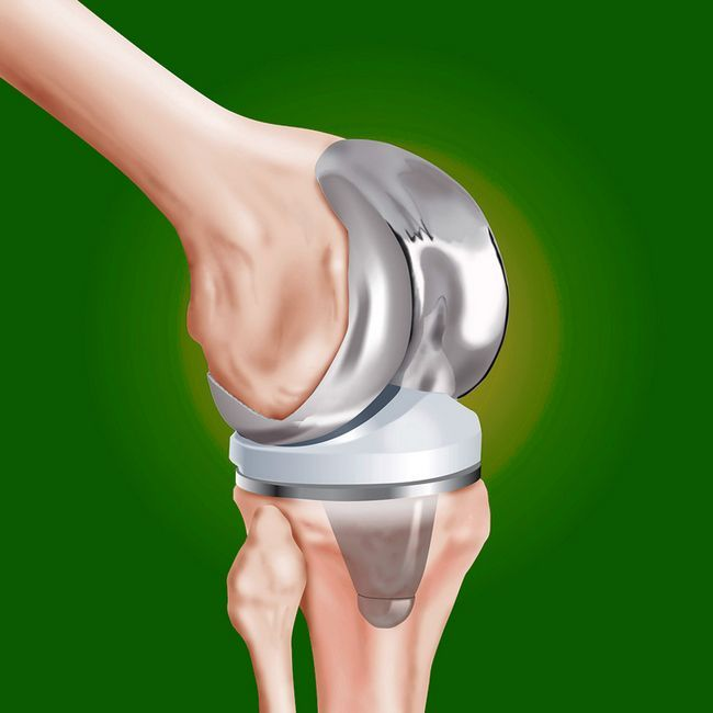 Заміна колінного суглоба