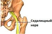 Защемлення сідничного нерва при вагітності