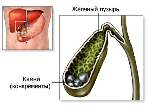 Жовчнокам`яна хвороба: симптоми і попередження