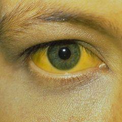 Яскраво-жовтий колір склер - симптом печінкової жовтяниці