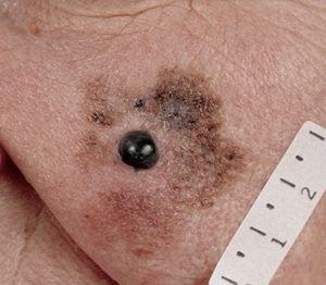 Злокачесвтенная меланома лентіго: особливості захворювання та лікування