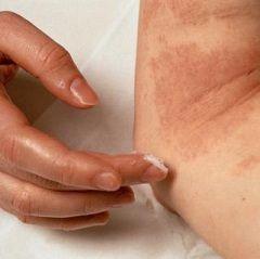 Методи і засоби лікування свербежу шкіри